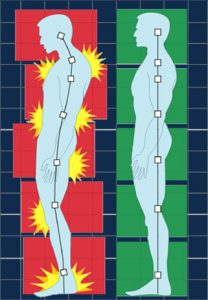 structural integration illustration